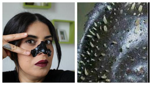 patch pour les points noirs du nez